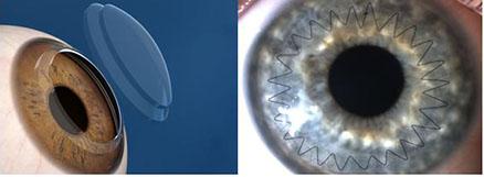 Пересадка роговицы глаза хабаровск